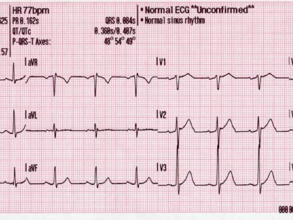 Best Practice Medicine 12 Lead Generated Sinus Rhythm